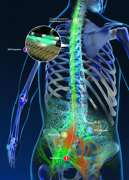 spinal chord prothesis For millions of americans suffering from debilitating nerve pain, a once-overlooked option has emerged as an alternative to high doses of opioids: implanted medical devices using electricity to counteract pain signals the same way noise-canceling headphones work against sound the approach, called.