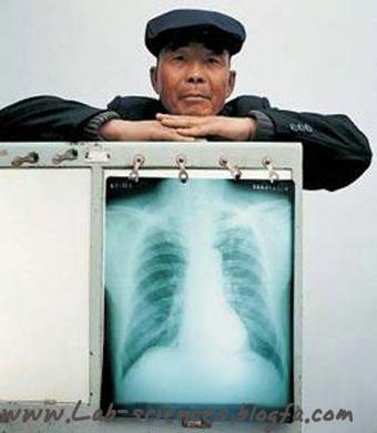 عکس رادیولوژی ریه سالم