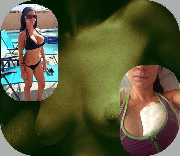 Nikki Belza, la mujer que casi muere por un piercing nipple
