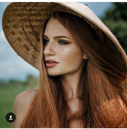 De víctima de alopecia a la nueva Rapunzel Rusa
