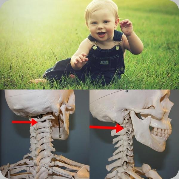Sorprendente:-médicos-reimplantan-cabeza-a-un-niño-que-había-sido-decapitado-en-accidente-de-coche