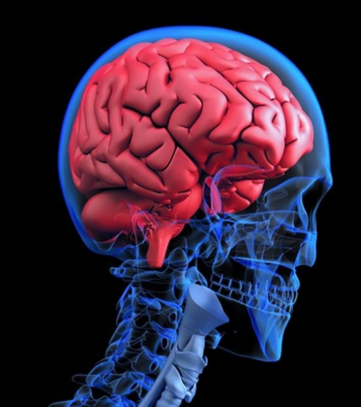 Aduhelm el medicamento que da esperanza a pacientes de Alzheimer
