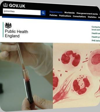 Una-cepa-de-gonorrea-resistente-al-tratamiento-convencional-causa-preocupación-en-el-Norte-de-Inglaterra