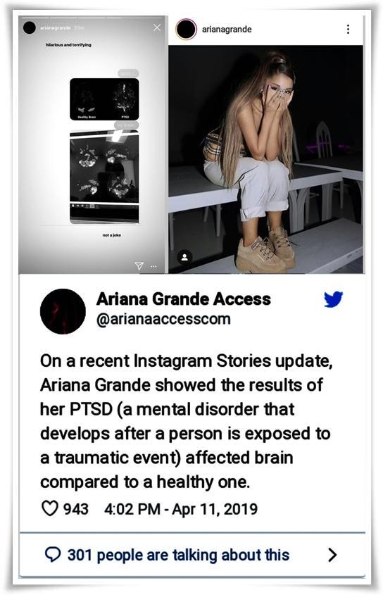 La chica sufre de trastorno por estrés postraumático cerca del segundo aniversario del atentado en el concierto del estadio Manchester Arena, en Inglaterra