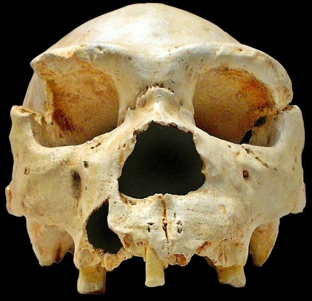 Hallan antigua víctima de la peste negra en el Neolítico