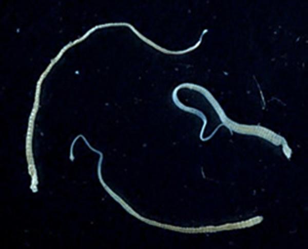 Hymenolepis-nana